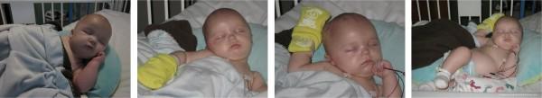 Craniosynostosis -- Ethan peacefully sleeping;  www.makeoversandmotherhood.com