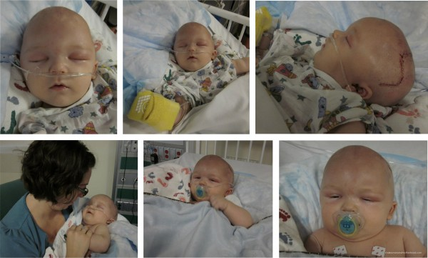 Craniosynostosis -- Ethan without his bandage;  www.makeoversandmotherhood.com