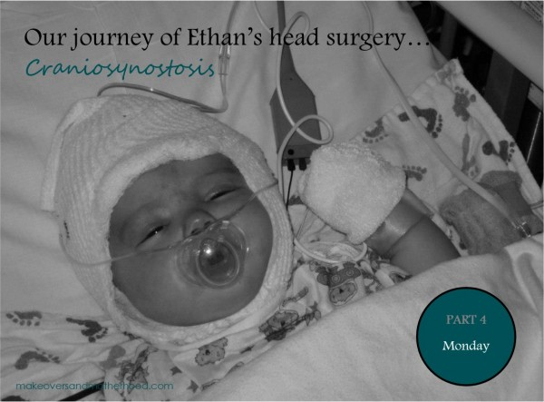 Our journey of Ethan's head surgery -- Part 4;  www.makeoversandmotherhood.com