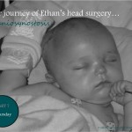 Our Journey of Ethan's Head Surgery… Craniosynostosis: Thursday