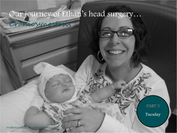 Our journey of Ethan's head surgery... Craniosynostosis: Tuesday;  www.makeoversandmotherhood.com
