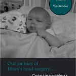 Our Journey of Ethan's Head Surgery… Craniosynostosis: Wednesday