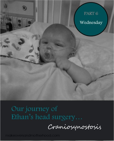 Craniosynostosis -- Wednesday;  www.makeoversandmotherhood.com
