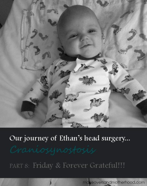 Craniosynostis -- Part 8: Friday and Forever Grateful;  www.makeoversandmotherhood.com