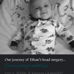 our journey of Ethan's head surgery… craniosynostosis: friday and forever grateful